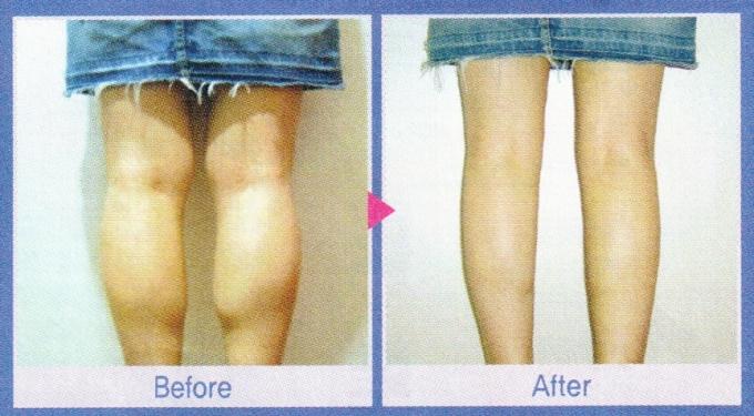 Korean Calf Reduction Surgery Advertisement Before After