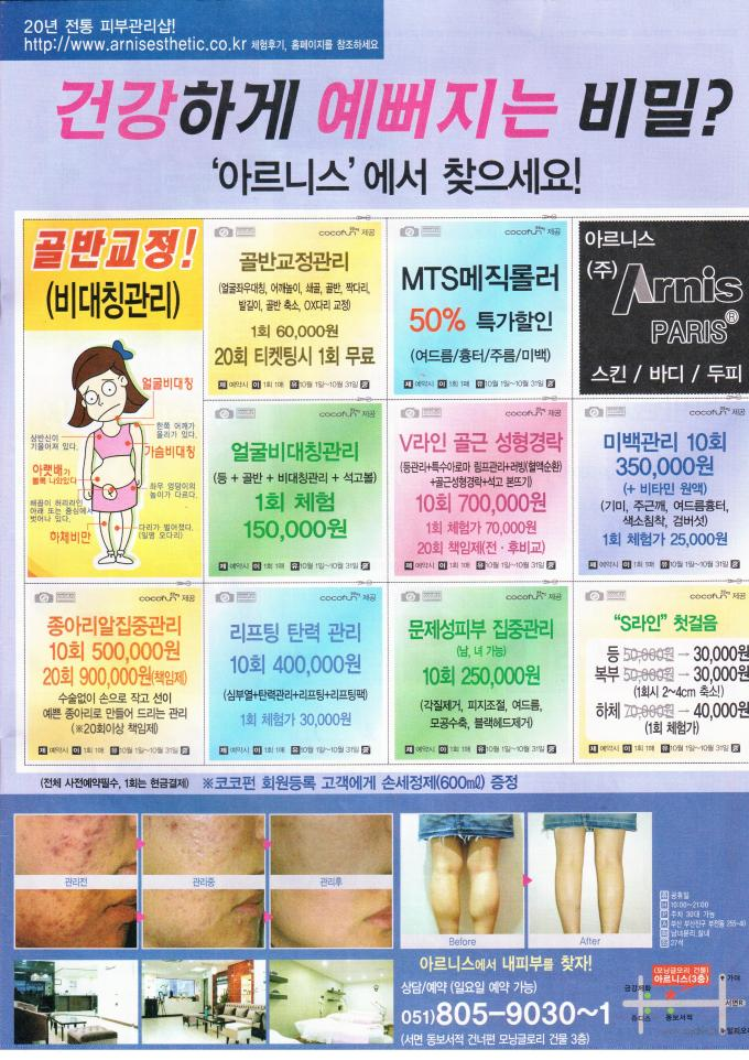 Korean Calf Reduction Surgery Advertisement